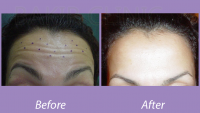 Botox Injection Case 2_1