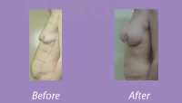 Abdominoplasty Case 1_2