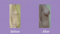 Abdominoplasty Case 1_3