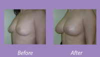 BreastAugmentationCase2_1