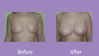 BreastAugmentationCase2_2