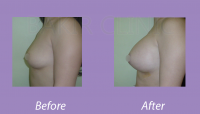 BreastAugmentationCase2_3