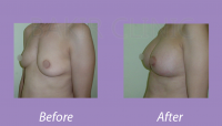BreastAugmentationCase3_1