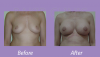 BreastAugmentationCase3_3