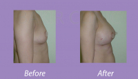 BreastAugmentationCase3_5
