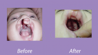 CleftPalate_Case1